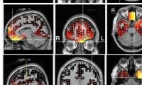 ΑΠΘ και ΕΚΕΤΑ κατά της  νόσου Alzheimer