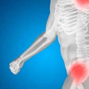 Το καλύτερο αντίδοτο στην οστεοπόρωση είναι η γνώση και η πρόληψη