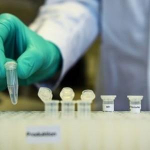 Η Γαλλία δοκιμάζει την χλωροκίνη  για τη νόσο Covid-19
